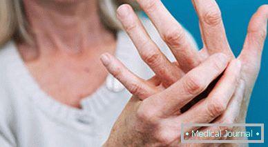 a kis ujj gyulladása)
