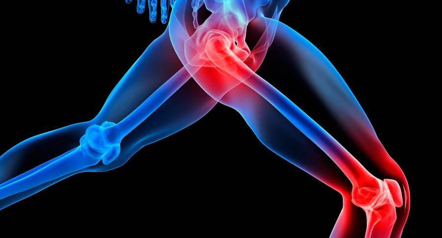 a leghatékonyabb kenőcsök az osteochondrozishoz