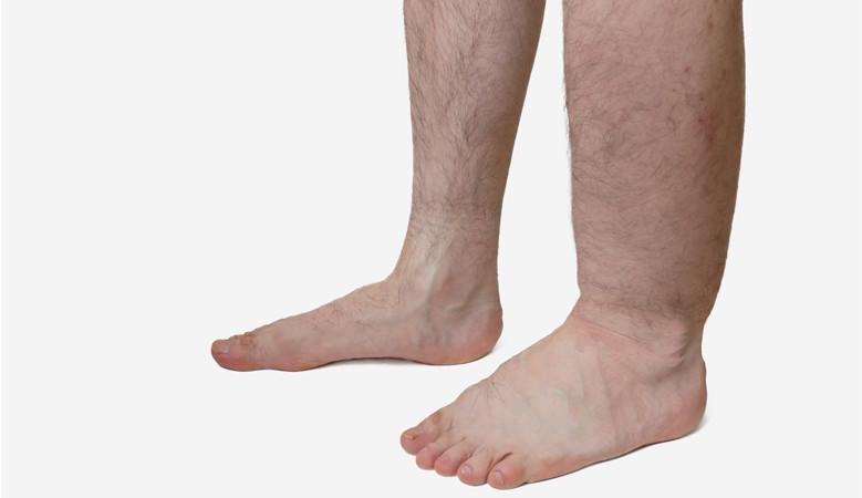 fájó lábát a boka járás közben)