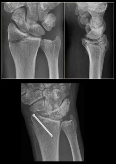 lövés fájdalom a lábízület