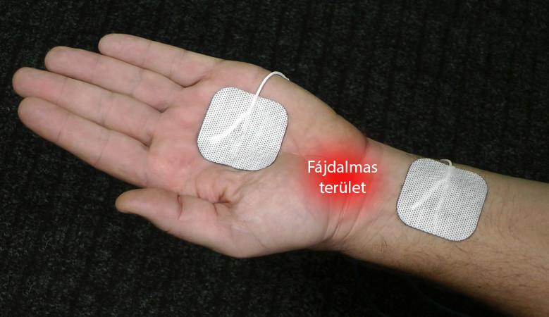 sárízület ízületi kezelés)