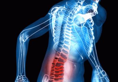 Vándorló vagy vándorló ízületi gyulladás: tünetek és kezelés