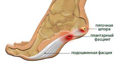 A bokaízület megduzzad és fáj: hogyan kell kezelni? A boka fájdalmai