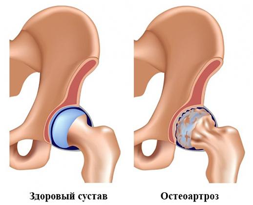 az ízületek duzzanatától térd osteoarthrosis kezelése 2 fokos áttekintés