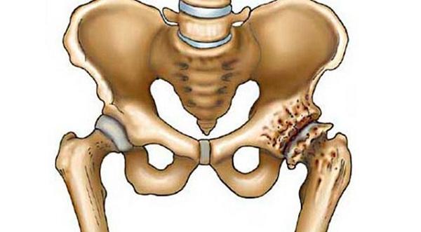 a csípőízület 3. fokának deformáló artrózisa)
