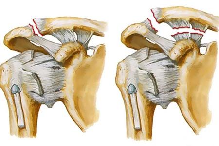 vállízület acromioclavicularis artrózisa