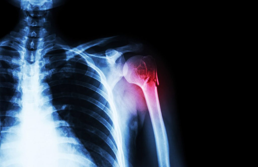 fájdalom a vállízület nyakában