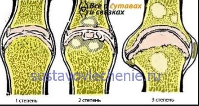 Gonarthrosis fok 2: gyógyszeres kezelés és népi jogorvoslati