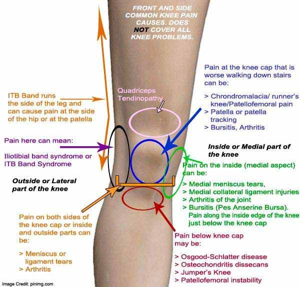 a térd bursitis kenőcsének kezelése)