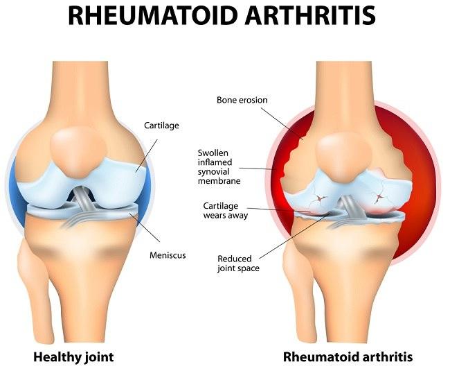 akut rheumatoid arthritis esettanulmánya térdízület betegség, úgynevezett