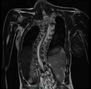 méhnyakos csigolyák artrózisa