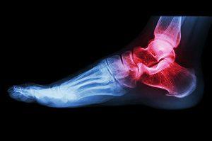 gyulladt boka ízületi kezelés fájdalom ízületek gerincnapló