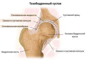 miért fájdalom a csípőpótlás után