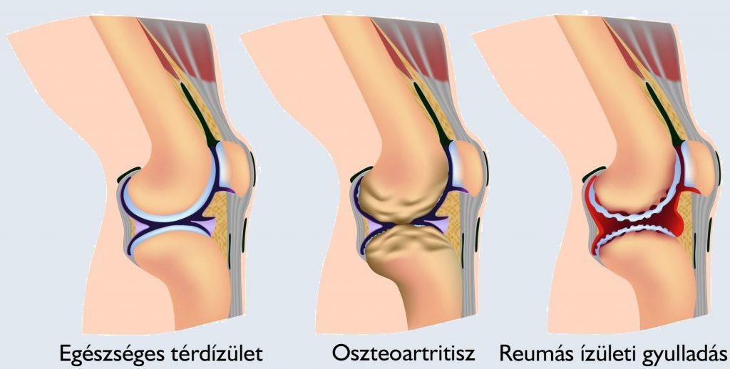 Tünetek és a térdízület gonartrózisának kezelése 1, 2 és 3 fok - Láb
