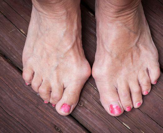 a nagy lábujjak ízületeinek ízületi gyulladásainak kezelése)