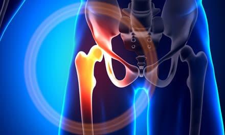 a csípőízület fáj, mi lehet az)