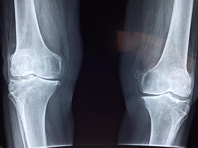 a csípőízület dysplasztikus artrózisa