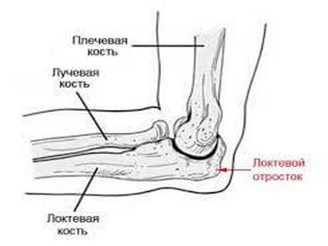fájdalom a könyökízület törésénél a legújabb gyógyszer az artrózis kezelésére