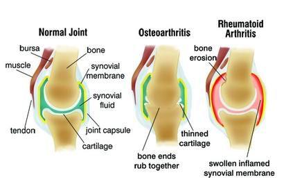 ízületi gyulladás vagy artrózis