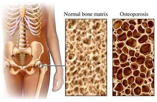 csontritkulás kezelése olcsó gyógyszerekkel)