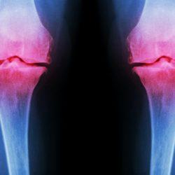 krém ízeltlábúak kezelése antibiotikus kezelés ízületi fájdalmak esetén