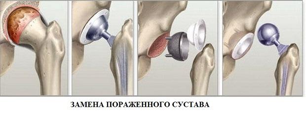 A csípőízületek aszeptikus nekrózisa: kezelés, következmények, tünetek