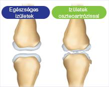 Az artrózis alattomos betegség - lassan alakul ki - Egészséges ízületek