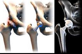 csípőízület artrózisának kezelése németországban