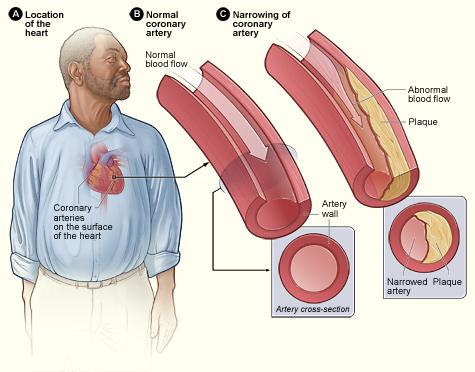 fokozott koleszterin ízületi fájdalom
