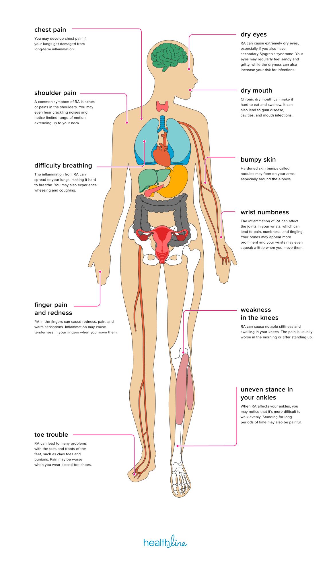 ízületek polyarthritis rheumatoid arthritis