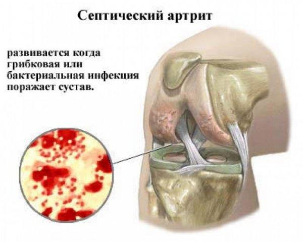 térdízület ízületi gyulladása troxevasin
