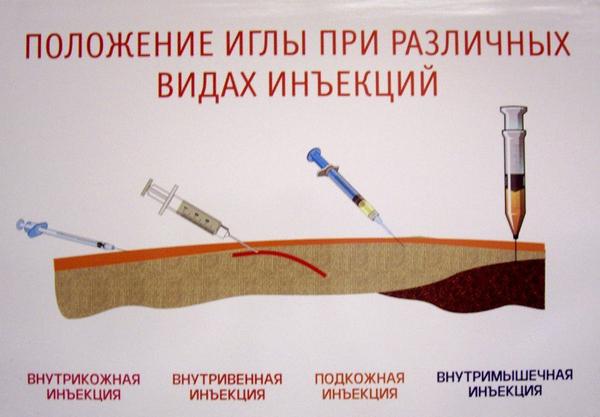 a leghatékonyabb gyógyszer az osteochondrozistól