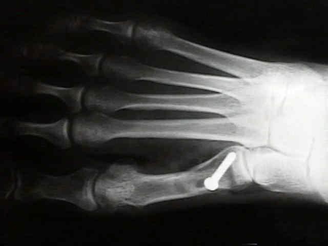 miért fáj a köröm és a kéz ízületei kenőcsök a térdgyulladás ellen