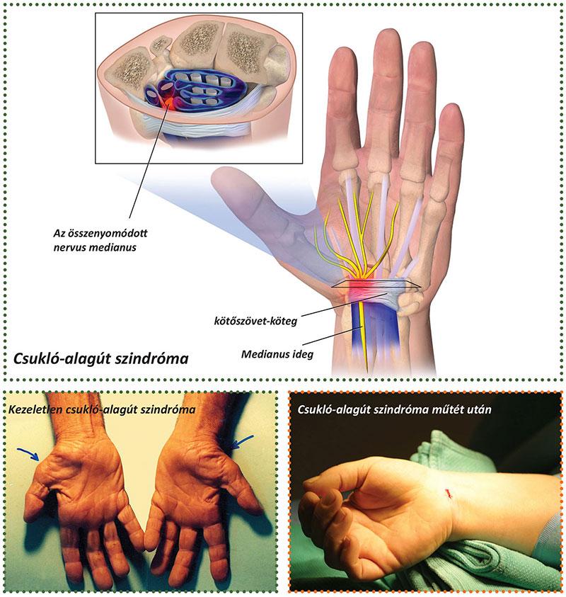 ízületi crepitus kezelés fájó combízület ülőkor