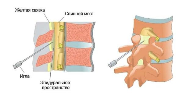 Felülvizsgálata a kenőcsök a duzzanat a szem alatt - Injekciók July