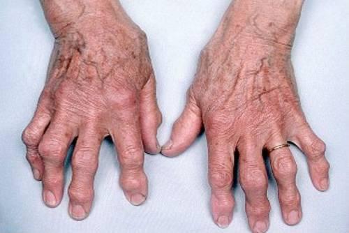 az artritisz artrózisának kezelése a kezén