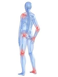 kawasaki ízületi betegség az 1. fokú kezelés vállízületének deformáló osteoarthrosis-ja