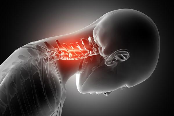 milyen kenőcsöt kell használni a nyaki gerinc csontritkulása esetén)