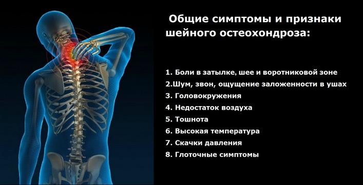 milyen kenőcsöt válasszon a nyaki osteochondrozishoz