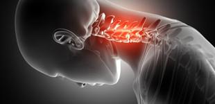A csontritkulás