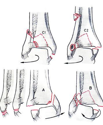 a nagy lábujj ízületének kezelése dimexiddal