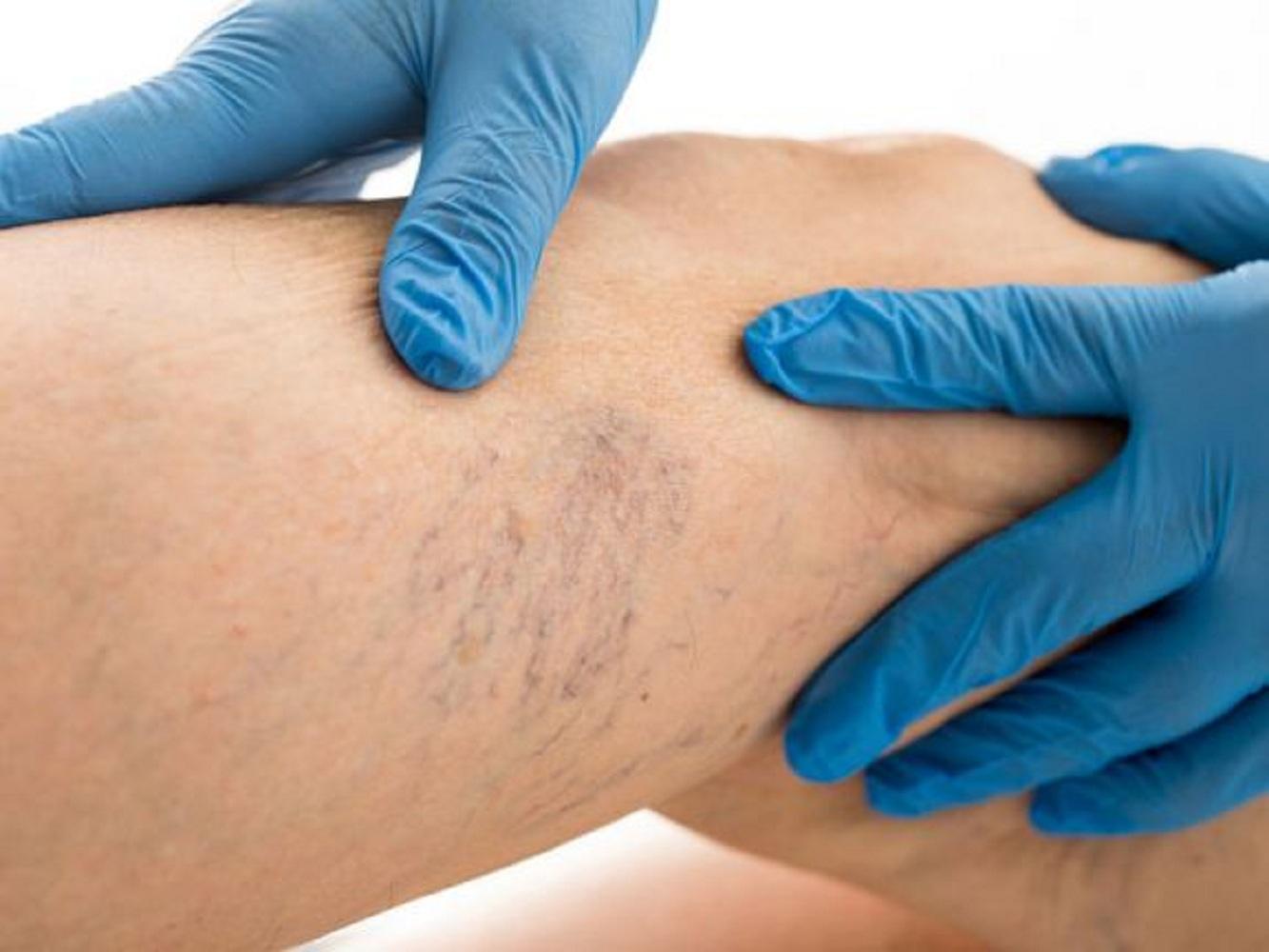 hogyan lehet enyhíteni a porcgyulladást