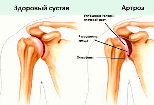 szindrómák a vállízület fájdalmáról)