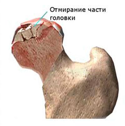 ureaplasmosis esetén fájnak az ízületek a térdízület kezelésének keresztezett ligamentumainak sérülése