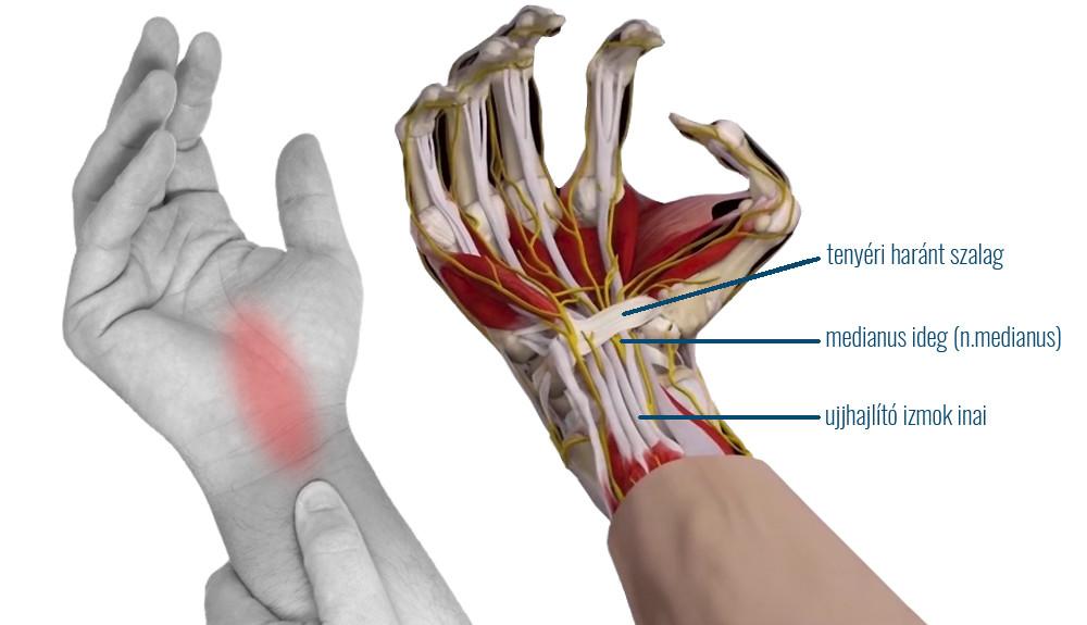 ujj zsibbadás artrózisos kezeléssel