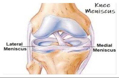 meniszkusz sérülés tünetei