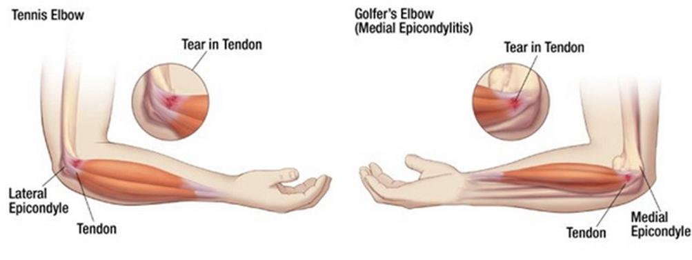 a térd artrózisának modern kezelése