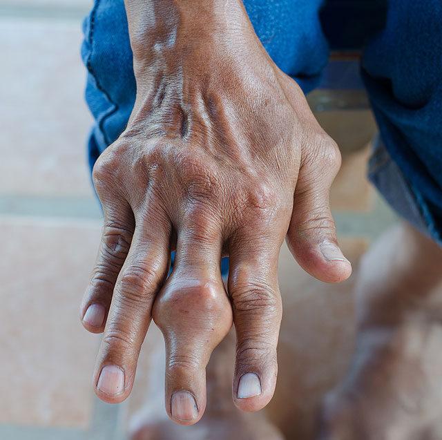a bal láb kis ujjának fájó ízülete)