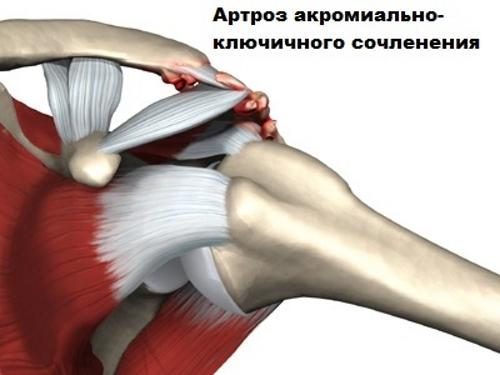A térd meniscus kezelése - Hörghurut July