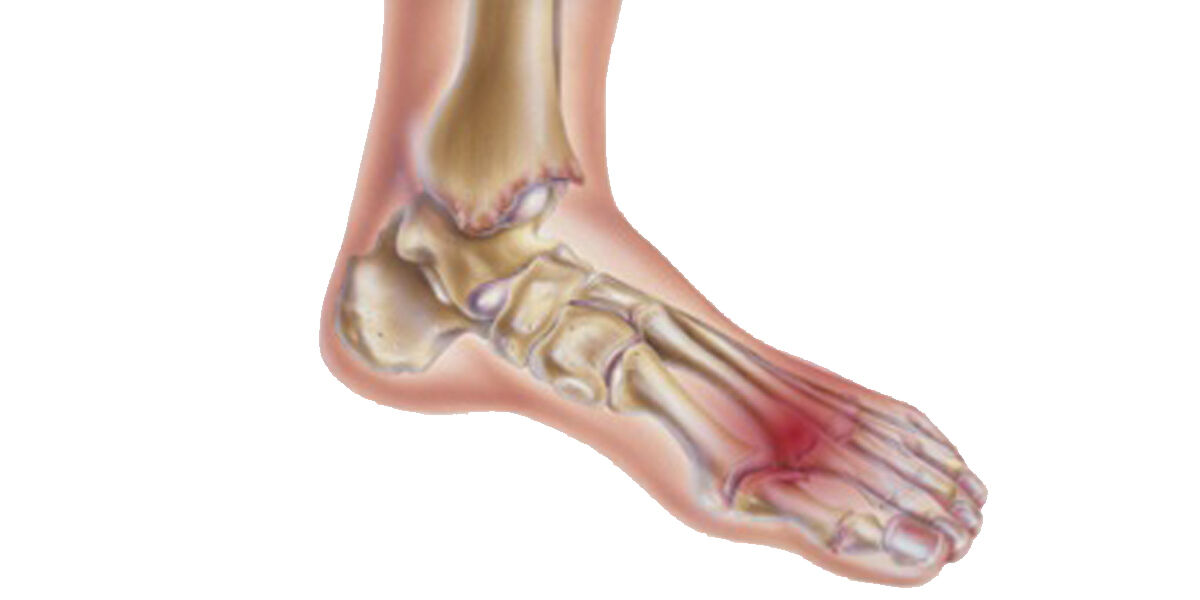 milyen kenőcsök kezelik az ágyéki osteochondrozist hogyan segítjük az ízületeket az artritiszben
